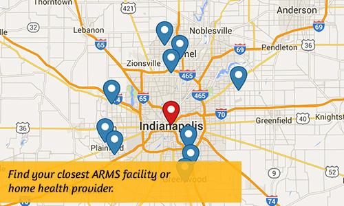 Find an ARMS facility or home health provider